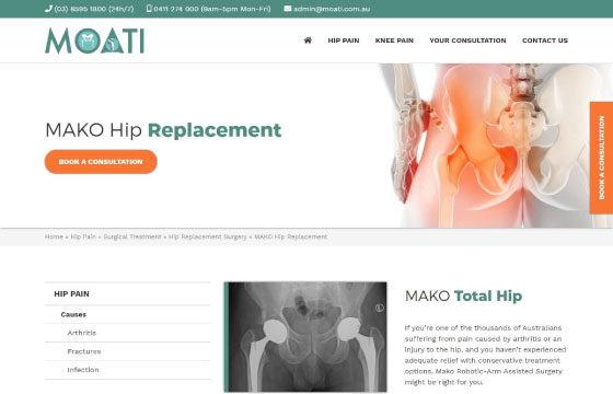 MOATI mako hip replacement