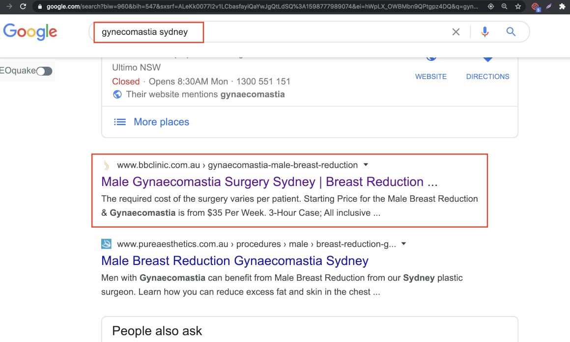 gyneacomastia sydney ranking number 1 - 30082020